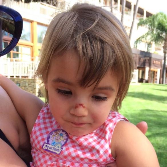 the Little One with a broken nose / die Lütte mit gebrochener Nase